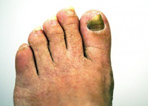 coconut oil post fungal nail infection